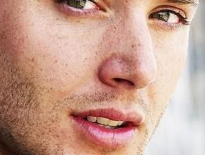 Jensen Ackles freckles